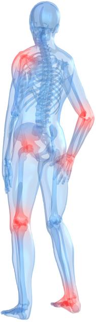 Douleurs articulaires, comment les apaiser ?